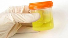 Цветът на урината е тест за здраве