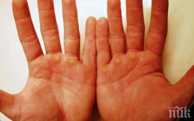 ВНИМАНИЕ! Ракът избива по дланите