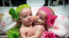 Вижте успешно разделените от 75 лекари сиамски близначки (СНИМКИ)