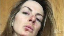 Сани Жекова падна тежко - извади рамо и охлузи лицето си (СНИМКА)