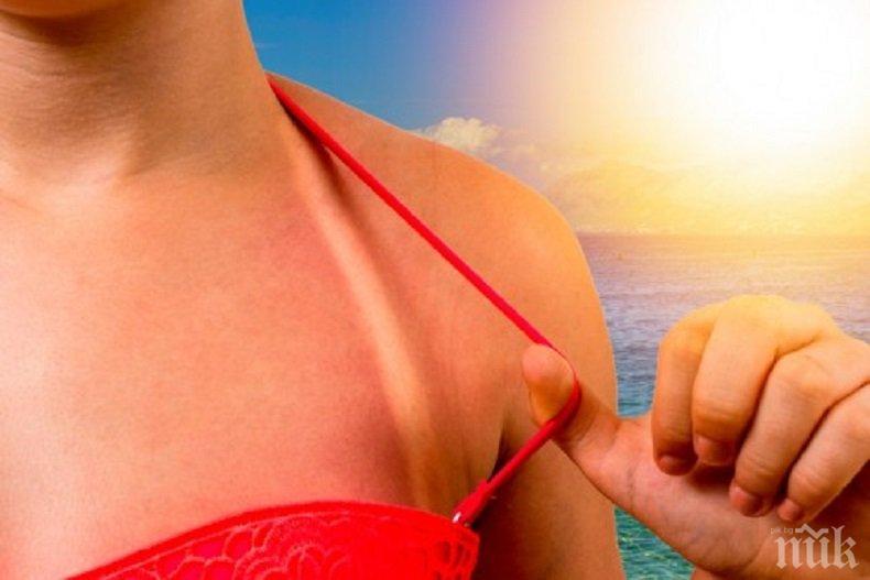 Домашна аптека: Първа помощ при слънчево изгаряне