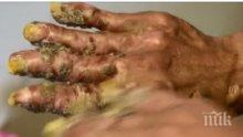 ШОКИРАЩА ГЛЕДКА: Човекът дърво се връща в болница - оперират го отново (ВИДЕО 18+)