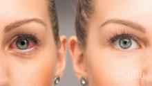 ОПАСНО! Паренето на очите е симптом на смъртоносна болест