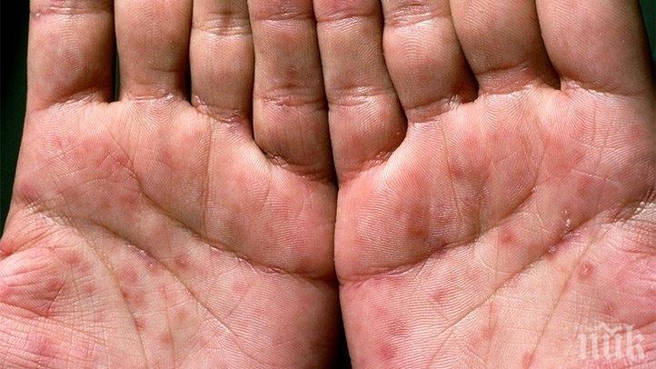 Засякоха болен от сифилис във Видин