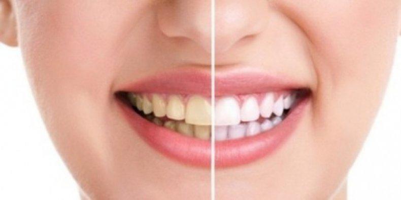 Кои плодове избелват зъбите по-добре от паста