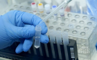 ШОК НА ОСТРОВА: 13-годишно момче с коронавирус почина във Великобритания