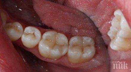 китай измислиха гел замества зъбните пломби