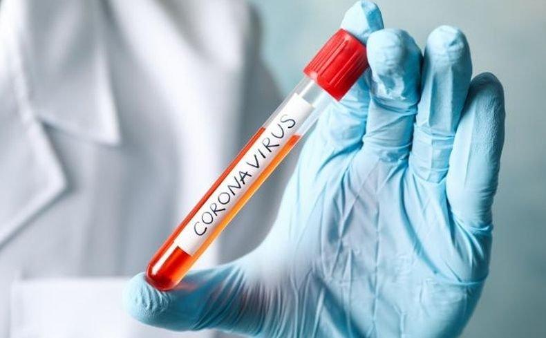 Над 25 100 новозаразени с коронавируса в Аржентина за денонощие