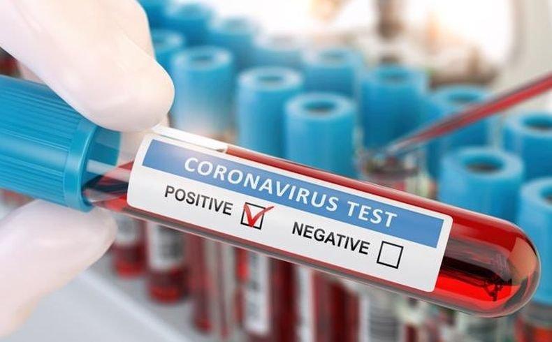 Заразените с коронавируса в Мексико достигнаха 2 543 083 души