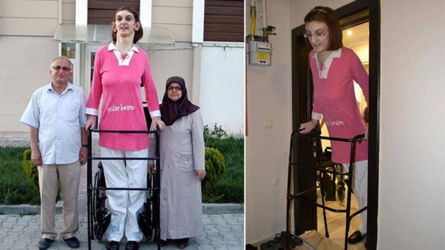 Туркинята Рюмейса Гелги бе призната за най-високата жена в света.