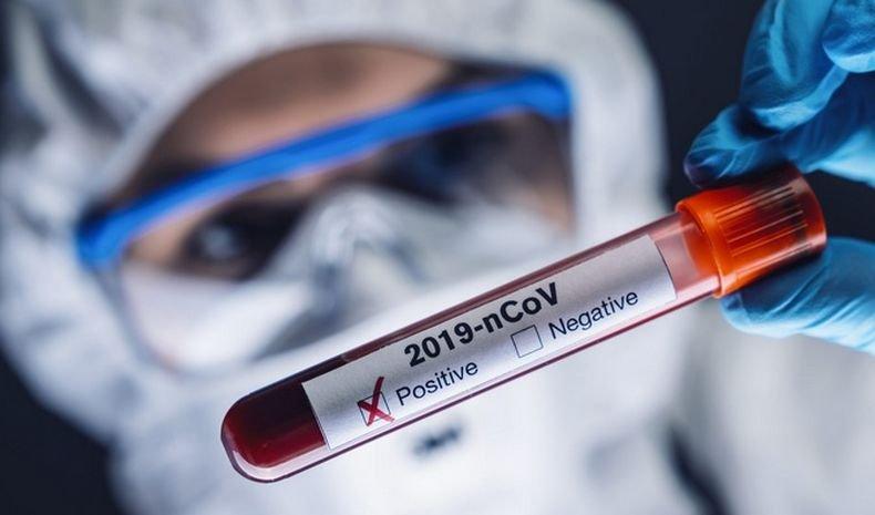 ПЪРВО В ПИК: 77 новозаразени с коронавирус в неделя, излекуваните са 396