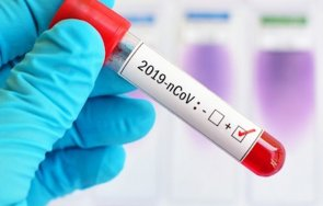 заразените коронавируса мексико достигнаха 524 654 души