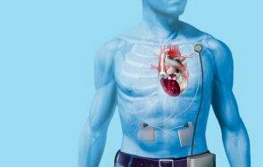 европа първа трансплантация изцяло изкуствено сърце