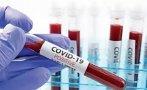 Над 3 200 новозаразени с коронавируса за денонощие във Франция